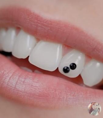 Tooth Piercing or Dental Piercing _5