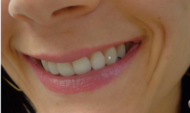 Tooth Piercing or Dental Piercing _8