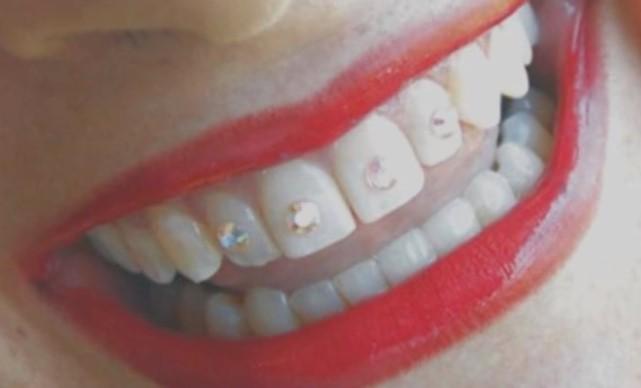 Tooth Piercing or Dental Piercing _7